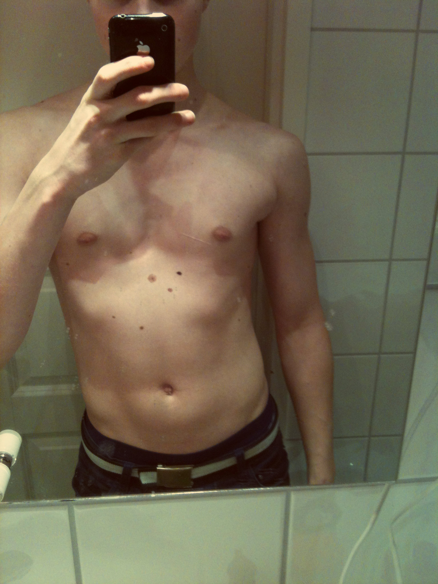 Pectus Excavatum Bodybuilding Transformation The gallery for -->...